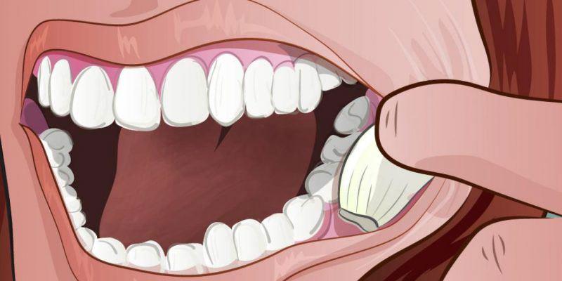سیر برای دندان درد