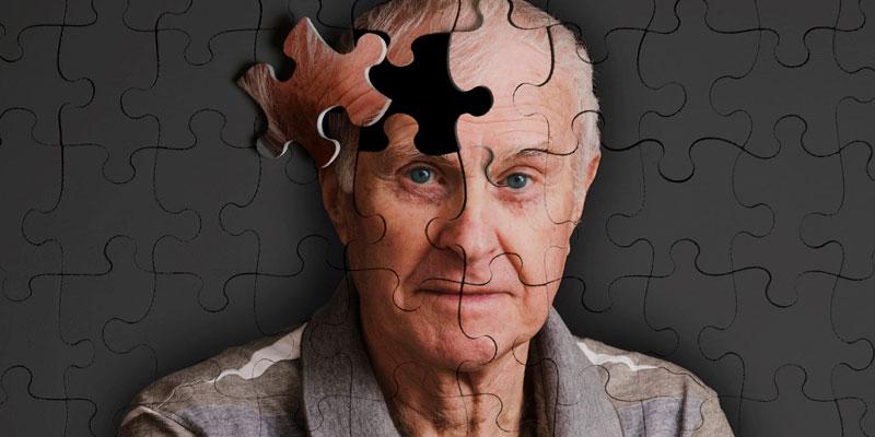 کشف آلزایمر توسط روانپزشک آلمانی