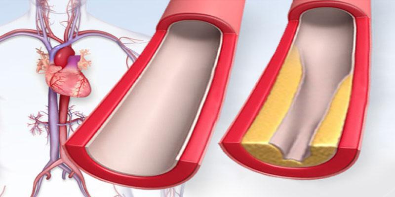 عوامل-افزایش-دهنده-چربی-خون