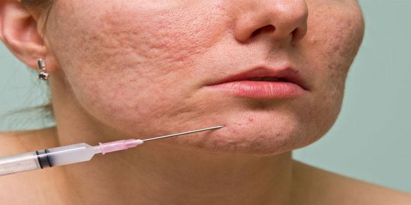 4-تزریق-فیلر-یا-پر-کننده-ها-بر-سطح-پوست
