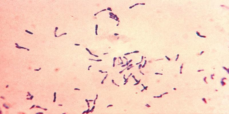 با-فارنژیت-یا-التهاب-گلو-آشنا-شوید-دیف